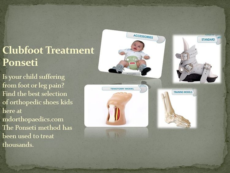 Clubfoot Treatment Ponseti birt - mdorthopaedics1 | ello