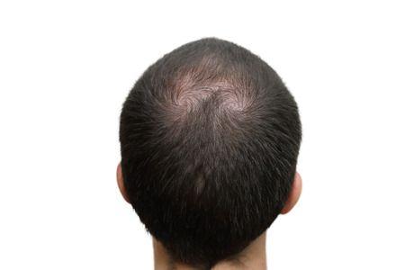 Hair Replacement Work? people d - hairtransplantindubai | ello