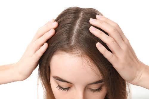 Female Pattern Hair Loss? Men t - hairtransplantindubai | ello