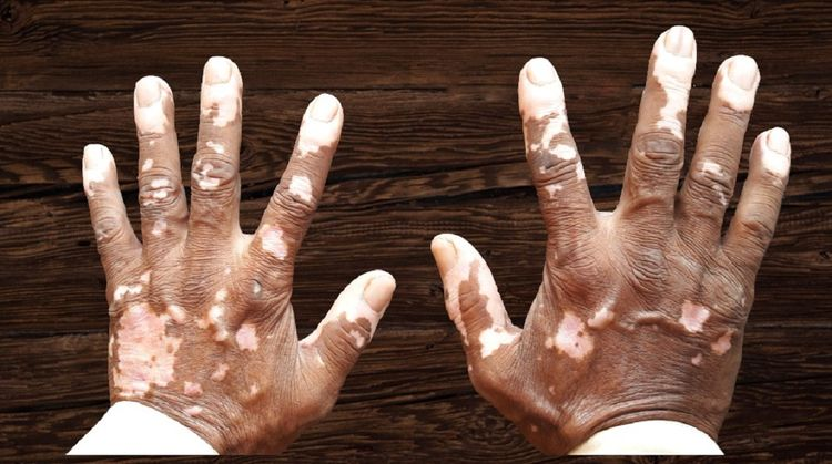 Vitiligo Homeopathy Cure Mumbai - rahulx   ello