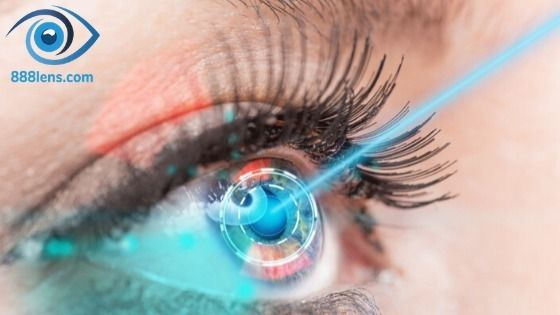 varieties contact lens includin - 888lens | ello