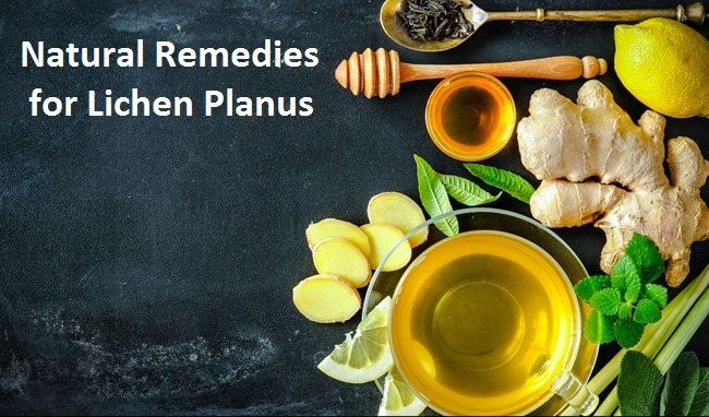 Natural Ways Treat Lichen Planu - herbs-solutions-by-nature | ello