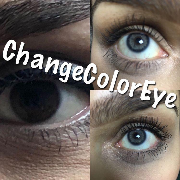 LASER EYE COLOR CHANGE TURKEY,L - changeeyecolor | ello