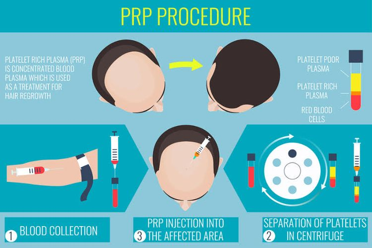 PRP therapy proven extremely ef - revivehairandskin | ello
