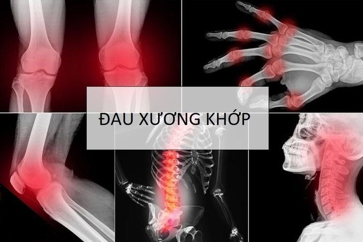 Đau xương khớp phổ biến không c - alphabone | ello
