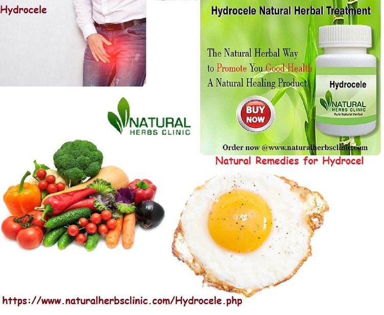 Natural Remedies Hydrocele trea - naturalherbs | ello
