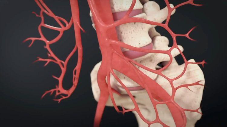 Searching 3D Medical Animation  - getanimatedmedical | ello