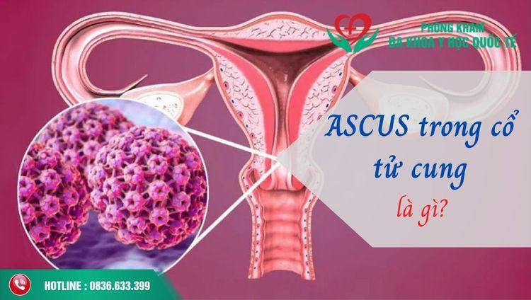 Ascus trong cổ tử cung là gì? Ý - misakila   ello
