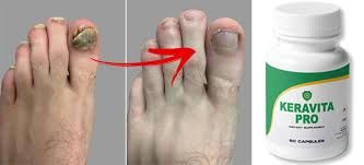 Keravita Pro order Healthy nail - pramodnamd | ello