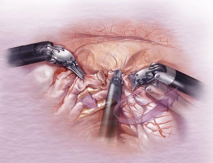Surgical release ureter - medical - alexandrawbaker | ello