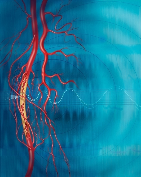 Peripheral artery disease - medical - alexandrawbaker | ello