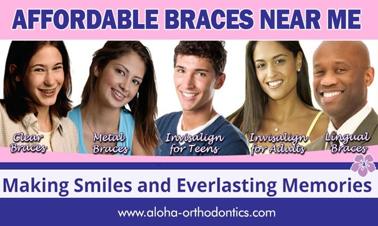 Affordable braces Braces benefi - braceslasvegas | ello