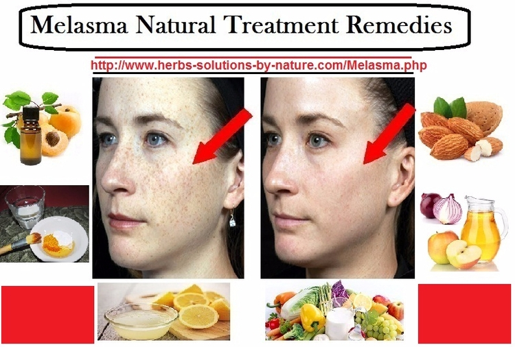 Melasma Natural Treatment Remed - herbs-solutions-by-nature | ello