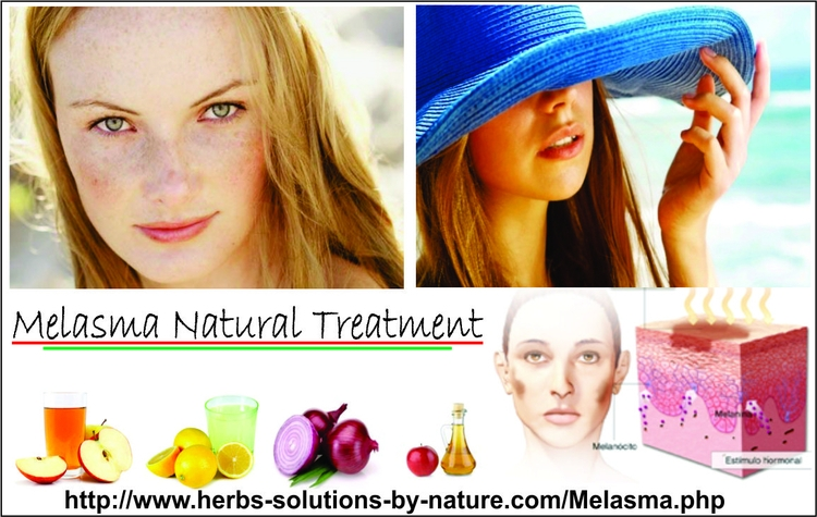 Find Method Melasma Treatment N - herbs-solutions-by-nature | ello