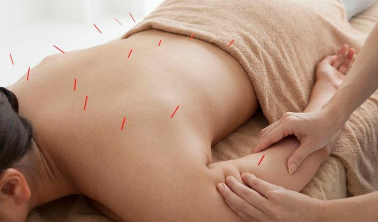 rid full Acupuncture treatments - jloungespa   ello