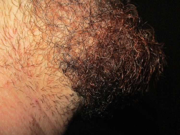 Beards texture pubes - beard, ginger - pleasantcynic | ello