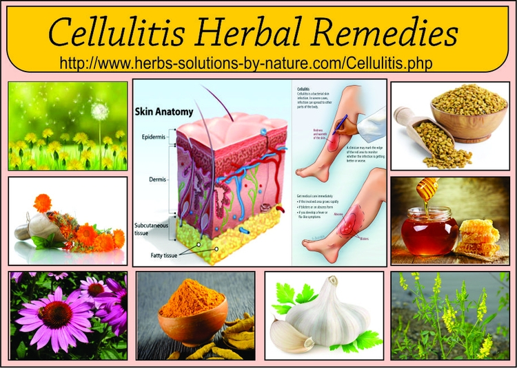 Cellulitis common bacterial ski - herbs-solutions-by-nature | ello