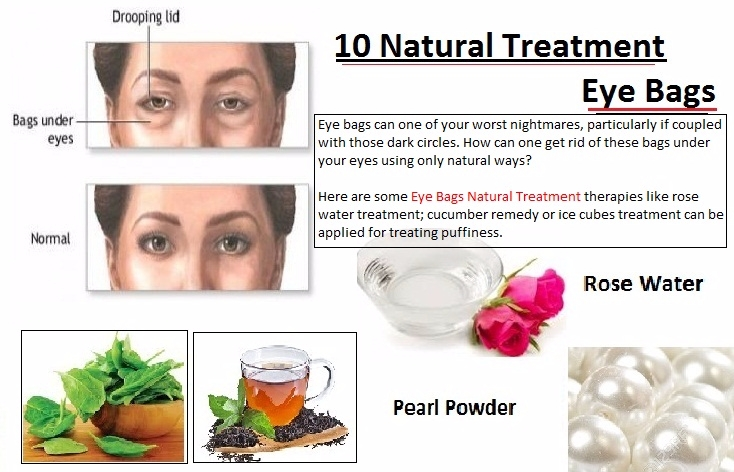 10 Natural Treatment Eye Bags Y - herbs-solutions-by-nature | ello