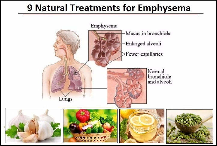 9 Natural Treatments Emphysema  - herbs-solutions-by-nature | ello
