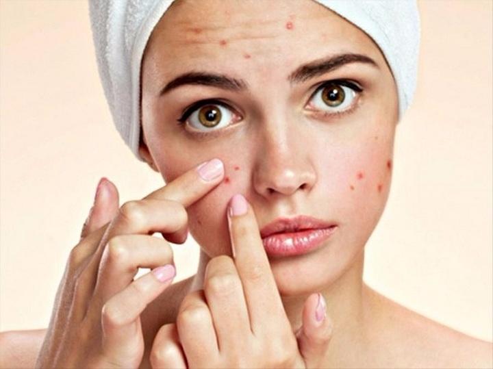 Anti Acne Serum Flawless Skin - ariastarrbeauty | ello