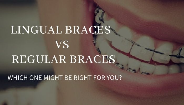 Lingual Braces Regular Braces:  - florencedentistry | ello