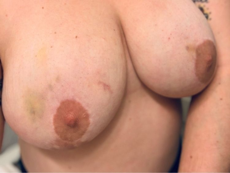 Lovely love marks - femalepresentingnipples - jojannon | ello