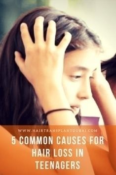 5 Common Hair loss Teenagers Lo - bella_james | ello
