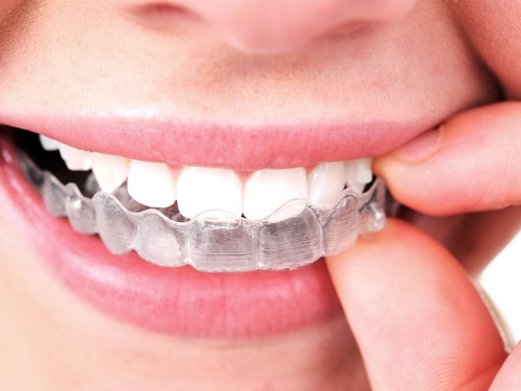 quality Invisalign Fairfield Co - estheticdental | ello