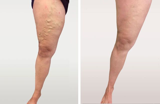 worry varicose veins, offer vei - kaateandersson | ello
