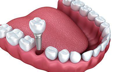 Dental implants surgery easier  - estheticdental | ello