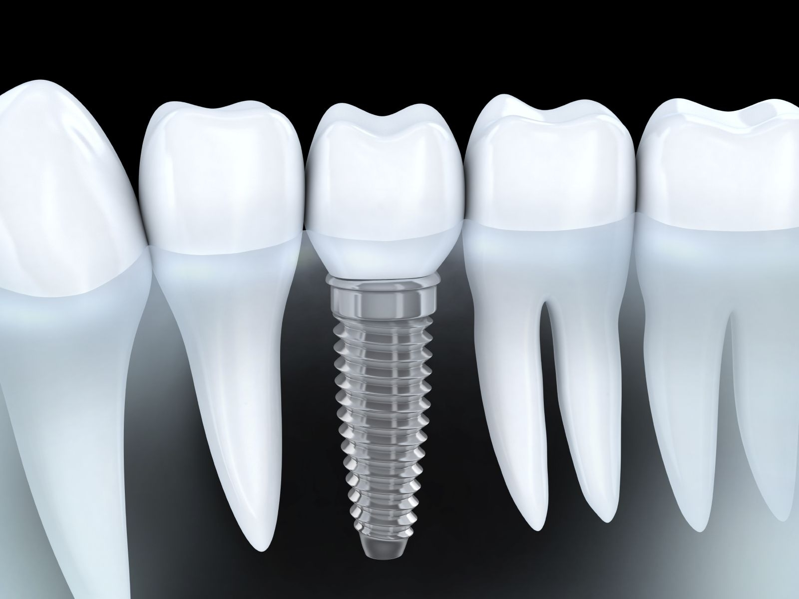 Milltown Dental & Implant Centre (@glenviewdentalsurgery) Cover Image