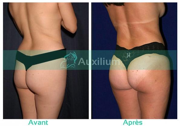 Augmentation des fesses (@auxaugfess) Cover Image