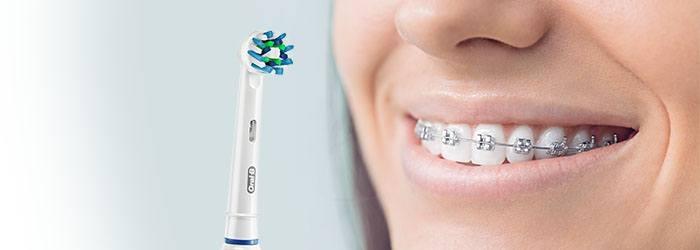 Clínica Dental ortodoncia (@brackets) Cover Image