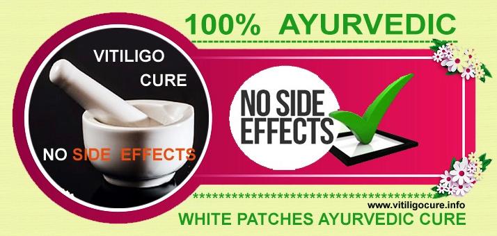 vitiligo cure (@vitiligocure) Cover Image