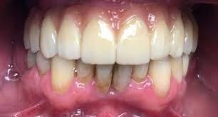 (@dentalimplantsmorrisville) Cover Image