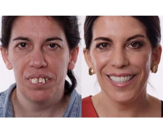 Natural Teeth Implant Center (@teethimplantfl) Cover Image